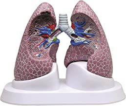 Lung Diseased COPD Anatomical Model