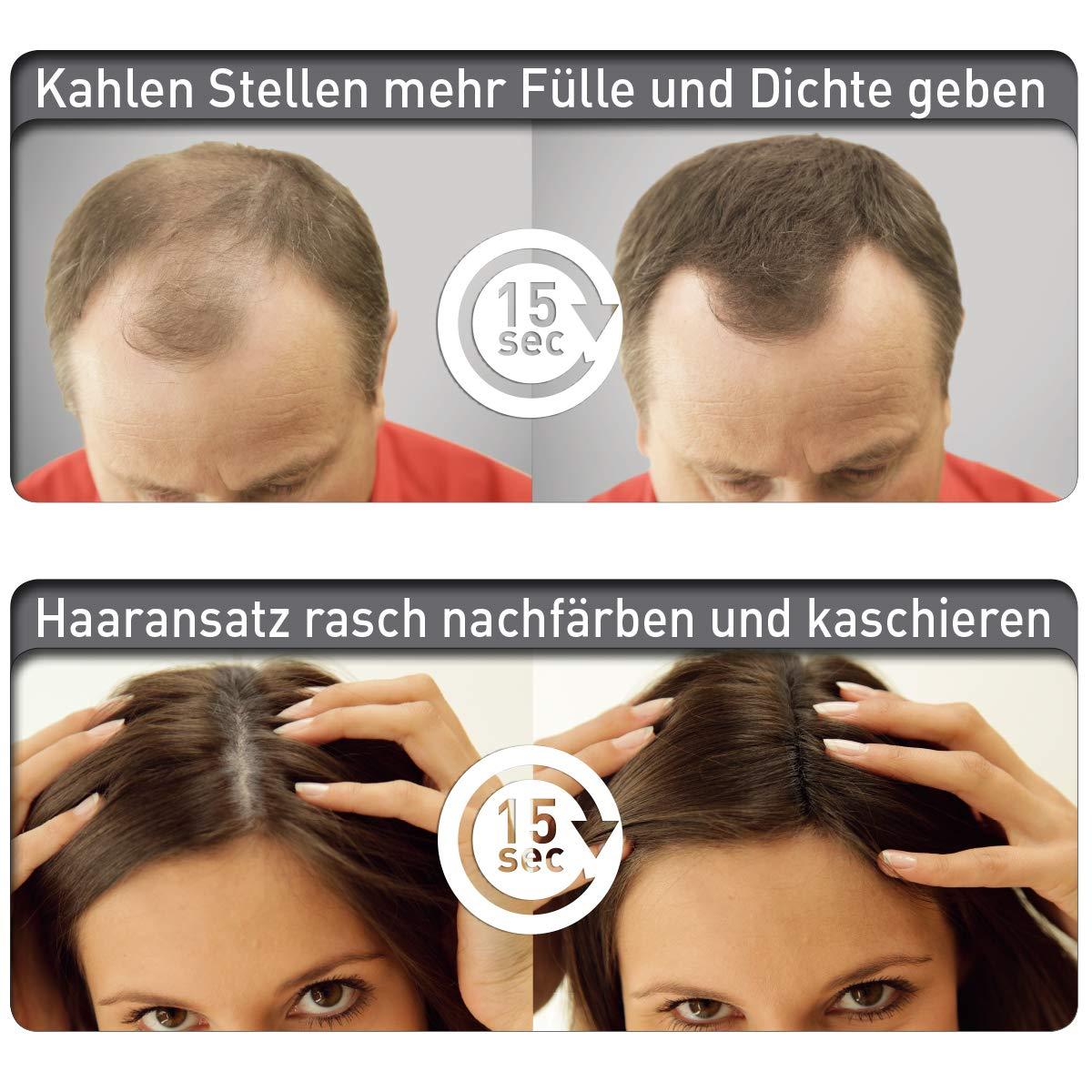 Beginnende frisuren glatze für Haarausfall stoppen