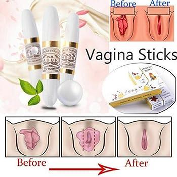 holprig vaginalen wand