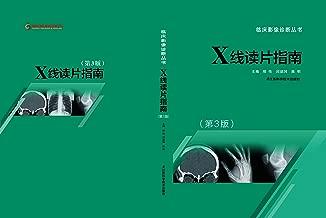 X线读片指南 (临床影像诊断丛书)