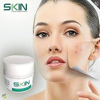 Skinapeel Crema Hidratante con Baba de Caracol - serum facial -Crema regeneradora antiarrugas anti acné para una piel ton...