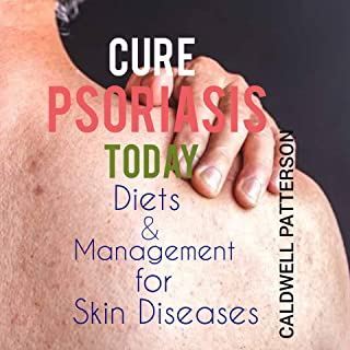 CURE PSORIASIS TODAY: DIET AND MANAGEMENT FOR SKIN DISEASE