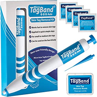 Auto Micro TagBand Skin Tag Remover Device for Small to