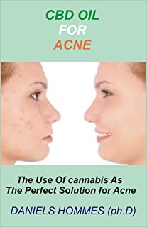 CBD OIL FOR ACNE: Comprehensive Guide on Using CBD Oil to cure Acne Permanently