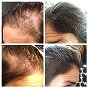 organic shampoos for thinning hair