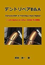 DentRepairBandA: Introduction to Paintless Dent Repair hekomi Before and After nihyakudai sono kaisetu (Japanese Edition)