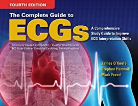 Best complete guide to ecg's Reviews