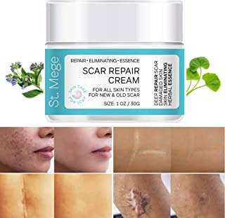 Scar Removal Cream, Scar Cream For Old Scars - Stretch Mark Removal Cream for Men & Women - Stretch Marks Relief and Burns...
