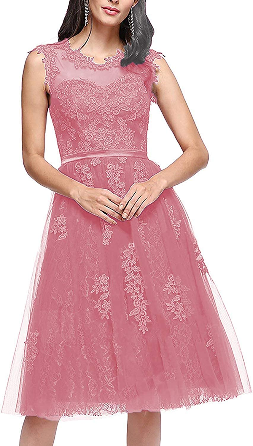Bridesmaid Dresses Short Homecoming Dress Lace Cocktail Party Gowns Prom Gown Knee Length