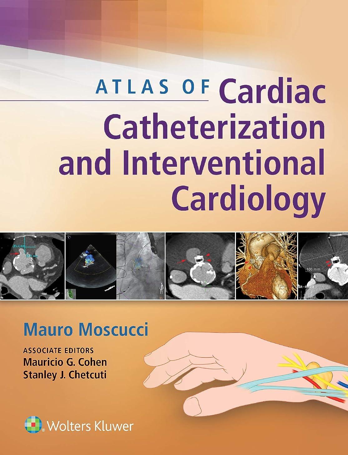 生じる溢れんばかりのバルコニーAtlas of Cardiac Catheterization and Interventional Cardiology (English Edition)