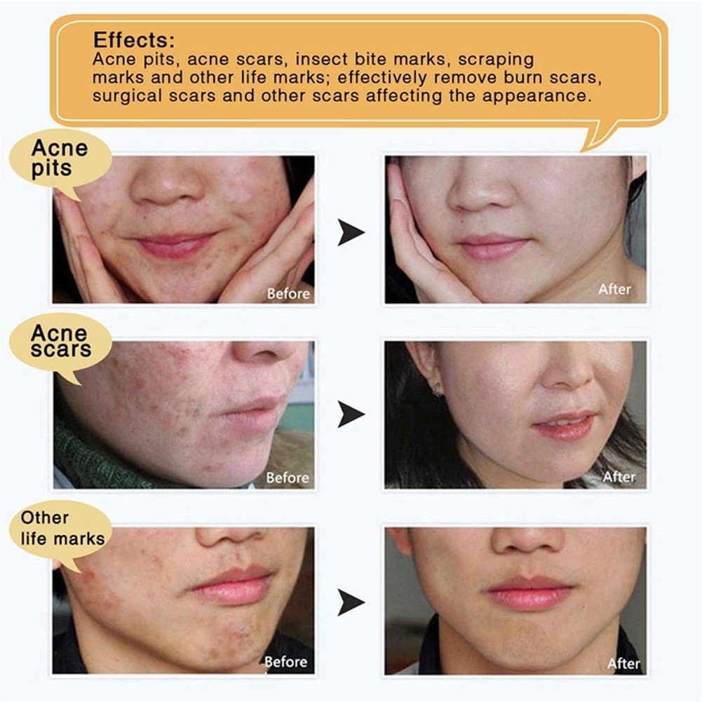 Allbesta Acne Scar Removal Cream Gel Repair Spots Treatment ...