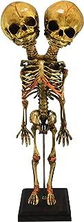 Asylum Zone Vintage Deluxe Siamese Twin Fetus Skeleton Fetal Oddity Specimen
