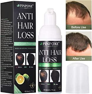 BUOCEANS Hair Growth Products, Hair Regrowth, Hair Growth Treatment, Hair Loss & Hair Thinning Treatment, Extra Strength Hair Growth Treatment Foam, One Month Supply