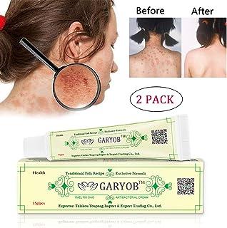 GARYOB 2PACK Antibacterial Cream Natural Gentle Repair Psoriasis Eczema Dry Itching Herbal cream