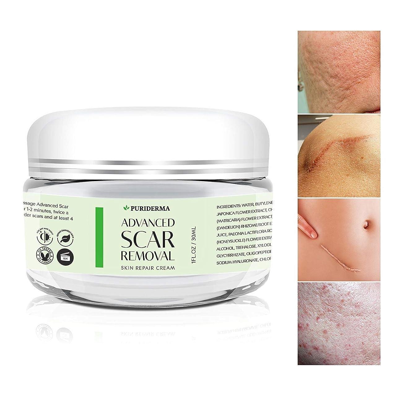 そこからへこみまっすぐにするPuriderma 社 の Advanced Scar Removal Cream (30 ml) 妊娠線 や 傷跡 修復に Advanced Treatment for Face & Body, Old & New Scars from Cuts, Stretch Marks, C-Sections & Surgeries - With Natural Herbal Extracts Formula -