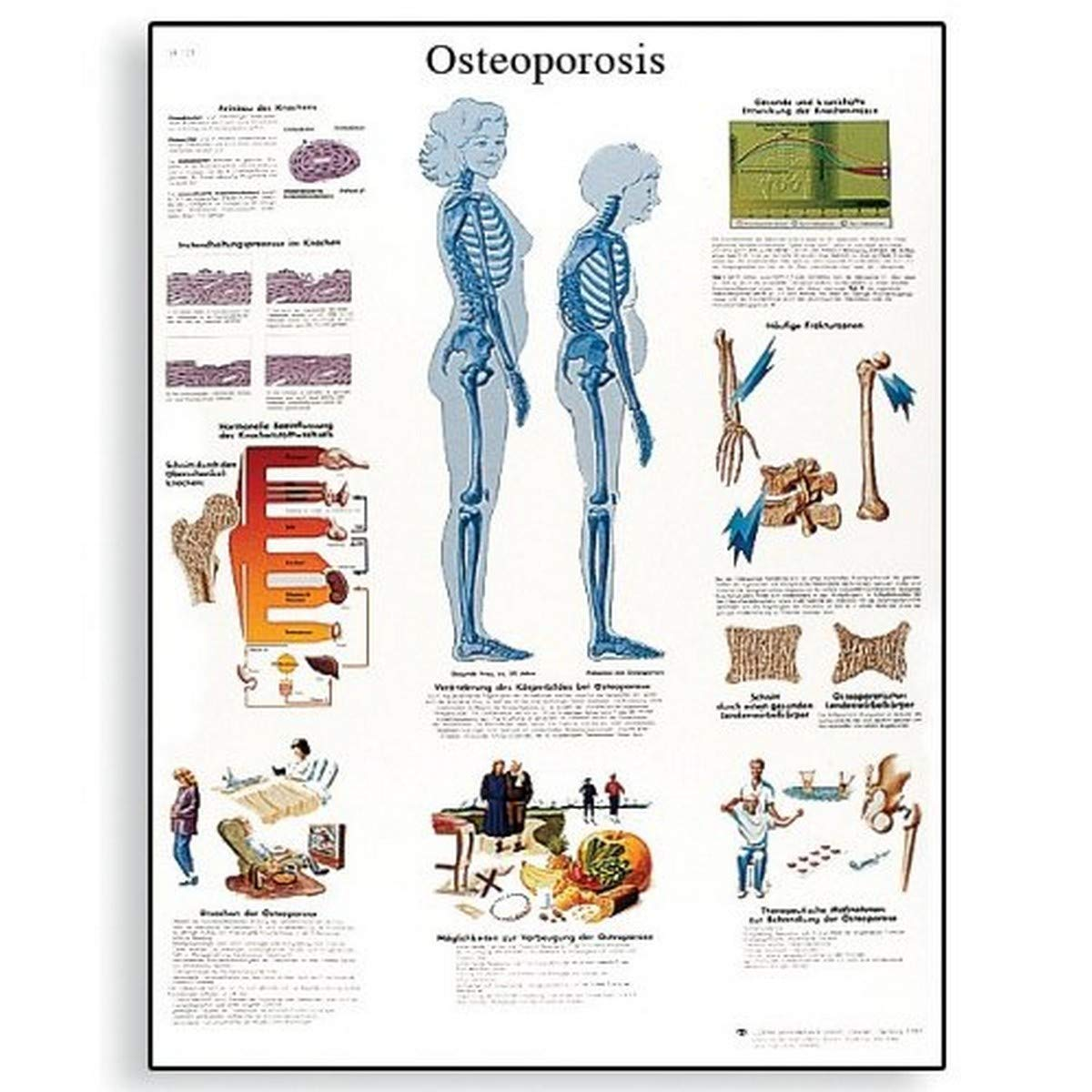 Poster Size 20 Width x 26 Height 3B Scientific VR1554UU Glossy Paper Pregnancy Anatomical Chart