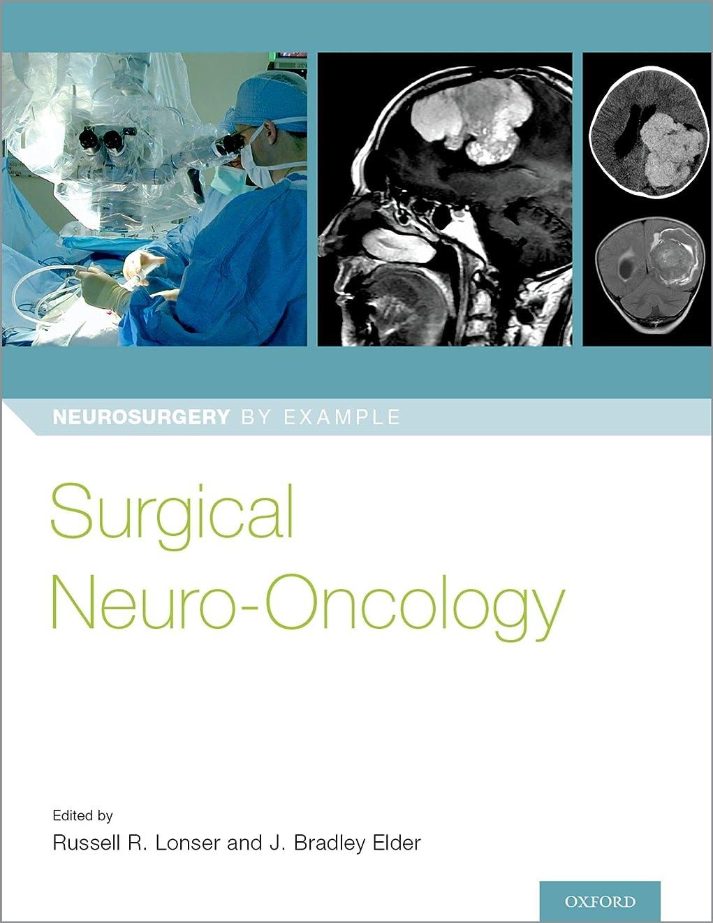 秀でるきちんとしたベックスSurgical Neuro-Oncology (Neurosurgery by Example) (English Edition)