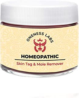 Homeopathic Mole and Skin Tag Remover - Neck Tag Mole Removal Cream (1 oz.) Skin Tag Removal Kit - All Natural Herbal Ingredients with Galangal Root & DMSO for Optimal Absorption