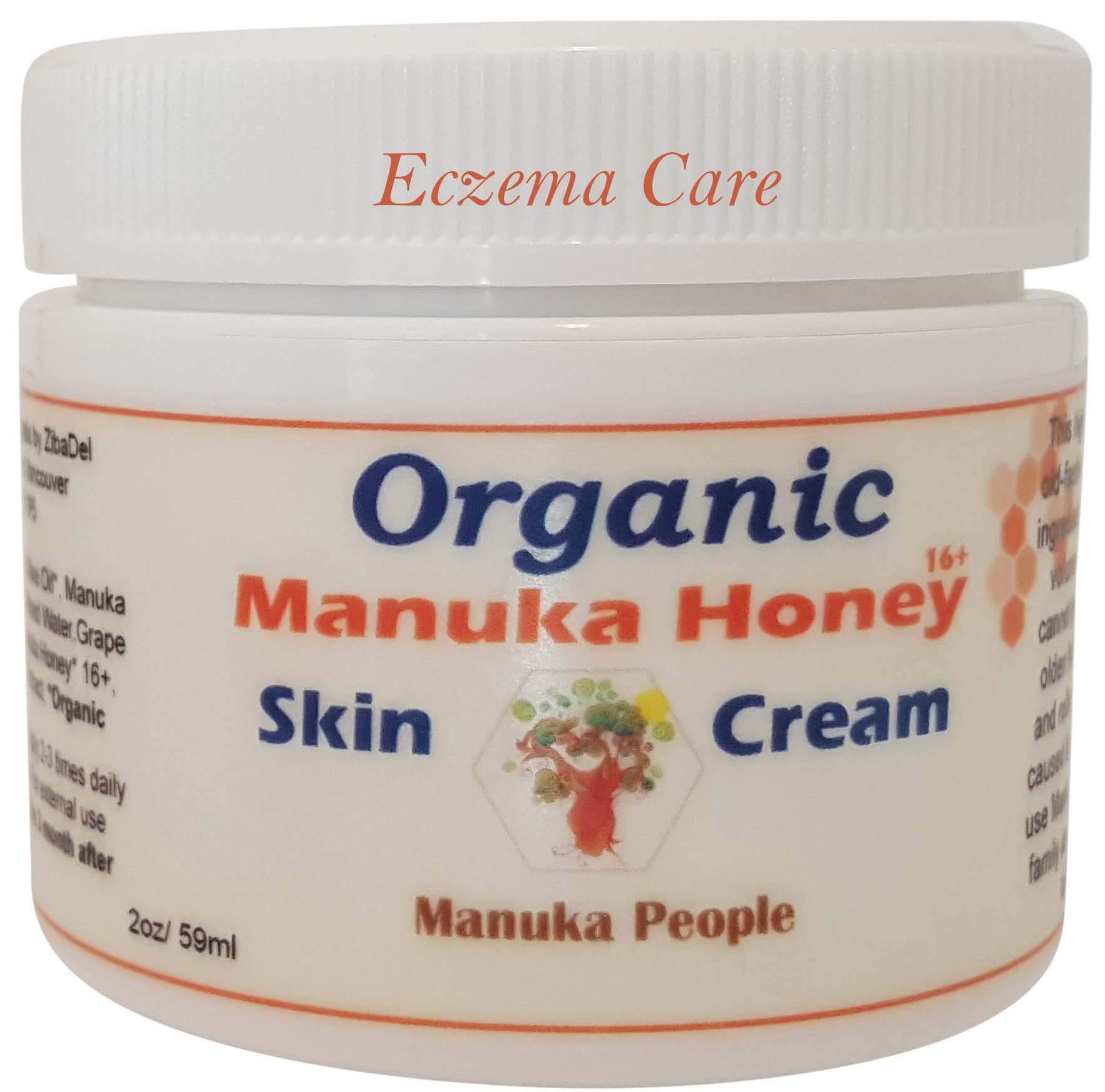 Manuka Moisture Psoriasis Treatment Irritated