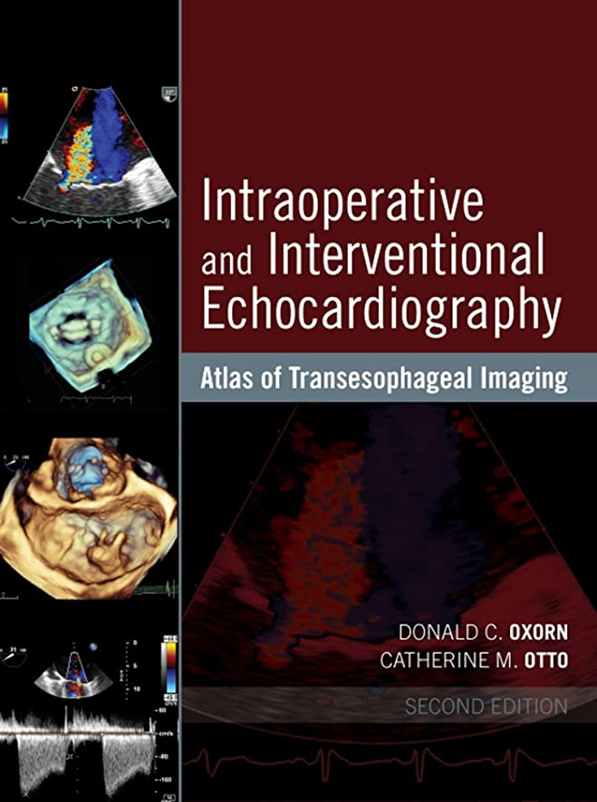 氏自転車旅Intraoperative and Interventional Echocardiography: Atlas of Transesophageal Imaging (English Edition)