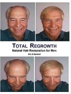 Total Regrowth: Natural Hair Restoration for Men (English