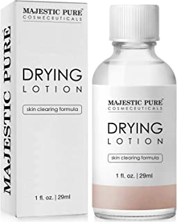 acne drying lotion by Majestic Pure