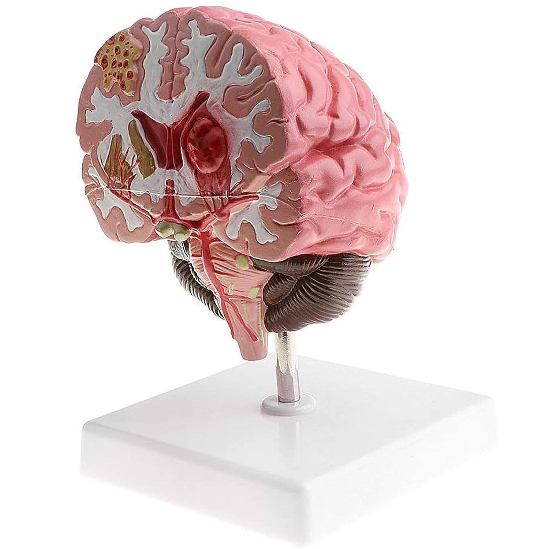 ZLF Recommended Human Brain Model New Shipping Free Shipping Disassembled Pathology Brainstem Demonstr