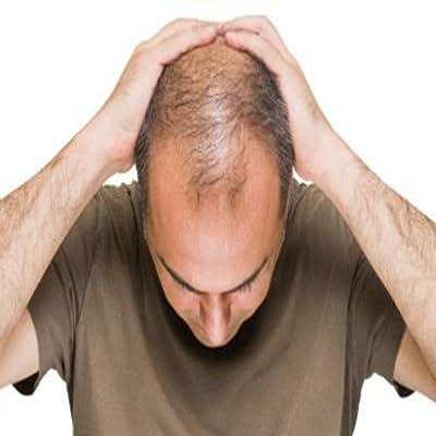 Hair Loss Treatment 100%