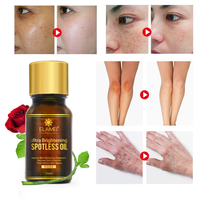 Natural Rose Brightening Oil 20 Bott, Rose Essential Skin ...
