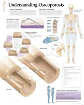 Understanding Osteoporosis chart: Laminated Wall Chart