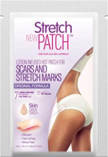 do body wraps reduce stretch marks