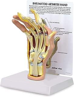 Hand Model | Human Body Anatomy Replica of Hand w/Rheumatoid Arthritis for Doctors Office Educational Tool | GPI Anatomicals