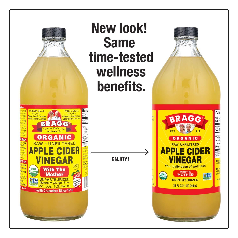 varicoză foot apple oțet ridică crema varicoasă