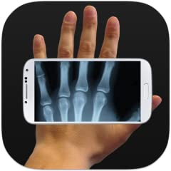 An unbelievable app that will entertain you and your friends!!! Scanning people with a xray scan Make your friends think you have the power to see their skeletons