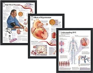 "Set of 3 Framed Medical Posters High Blood Pressure, Effects of Hypertension, Understanding DVT 22""x28"" Wall Diagrams"