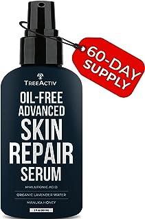 TreeActiv Oil-Free Advanced Skin Repair Serum   Hyaluronic Acid   Anti-Wrinkle   Anti Aging   Scar Gel   Revitalize Face a...