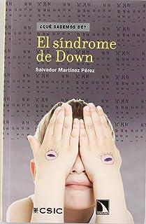 El síndrome de Down (¿Qué sabemos de?)