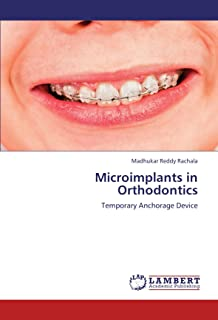 Microimplants in Orthodontics: Temporary Anchorage Device