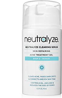cystic acne treatment by Neutralyze