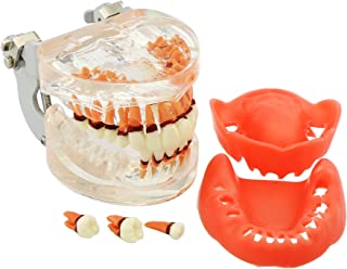 Dental Teeth Model for Parodontopathy Periodontal Disease, Removable Gingivae Pathology Teeth Model Used in Teaching,Explain,Studying for Adult(Transparent)