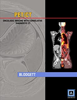 Specialty Imaging: PET/CT: Oncologic Imaging with Correlative Diagnostic CT (Published by Amirsys)