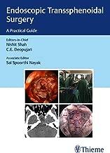 Endoscopic Transsphenoidal Surgery: A Practical Guide