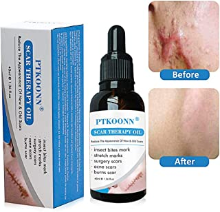 Scar Repair Oil,Scar Removal Oil,Scar Repair Essence,scar repair skin essential oil Reduce Acne Scars,Stretch Marks,Scar Removal Essential Oil for Face Acne Scar Spots Stretch Mark Treatment