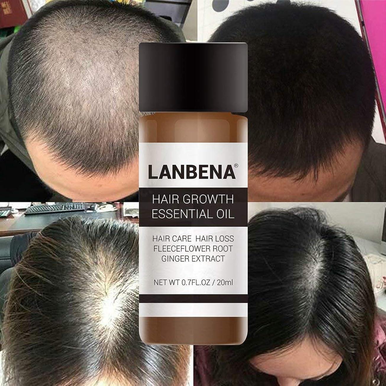 乗り出す切手霊(最高の品質と価格)3×20ミリリットル高速強力な髪の成長エッセンス製品エッセンシャルオイル液体トリートメント防止脱毛ヘアケア20ミリリットル×3ピース (Best Quality & Price) 3X 20ml Fast Powerful Hair Growth Essence Products Essential Oil Liquid Treatment Preventing Hair Loss Hair Care 20mlx3 Piece