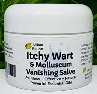 Urban ReLeaf Itchy WART & Molluscum Vanishing Salve ! Powerful Essential Oils, Painless, Effective, 100% Natural. Topical Ointment. Safe, Gentle for Kids & Delicate Skin.
