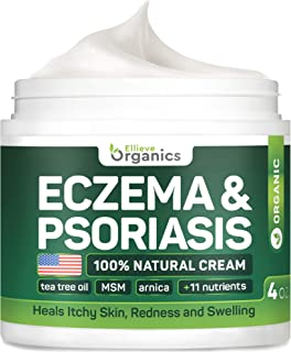 Psoriasis & Eczema Cream - Natural Eczema Treatment with Tea Tree Oil, MSM, Honey & Arnica - Made in USA - Powerful Dermat...