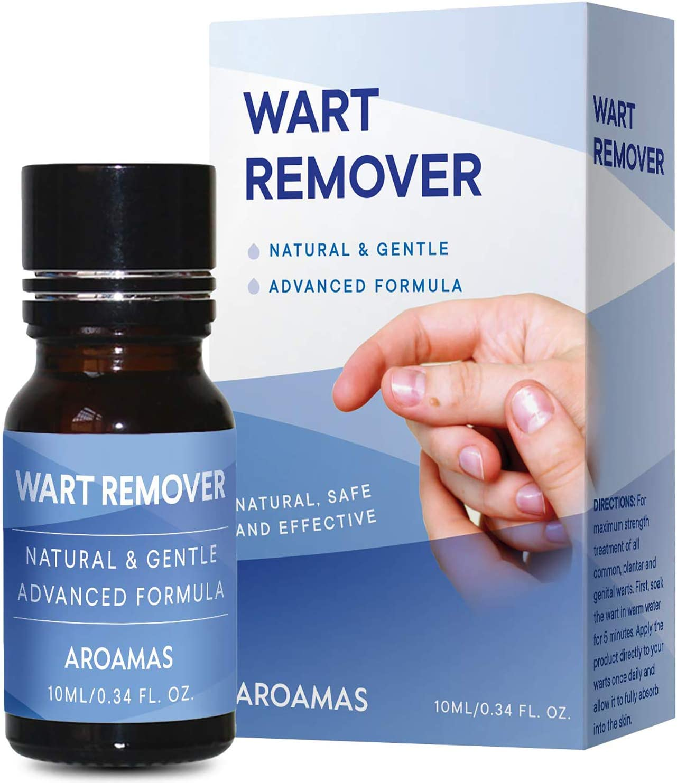 Warts treatment with liquid nitrogen. Wart treatment with liquid nitrogen