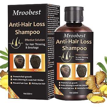 Hair Thickening Shampoo, Hair Growth Shampoo, Hair Loss Shampoo, Hair Loss Treatment, Hair Thinning Shampoo, Natural & Organic Herb Shampoo for Hair Regrowth Faster/Prevent Thinning Hair Loss
