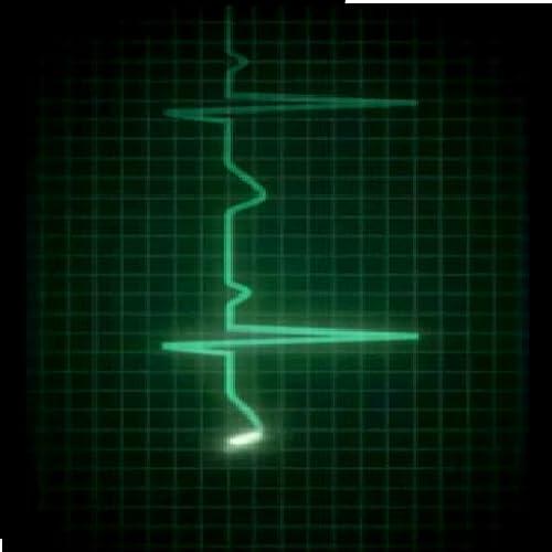 Life Like EKG