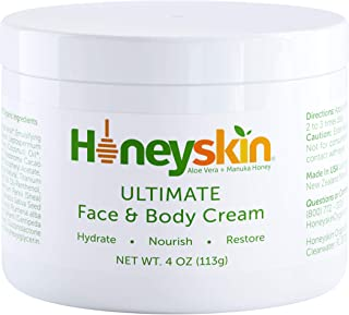 Face and Body Moisturizer Cream – Organic Aloe Vera and Manuka Honey for Rosacea..